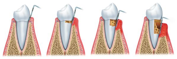 Entstehung von Parodontitis
